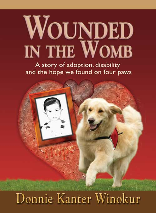 Wounded in the womb, adoption, disability and the hope we found on four paws by Donnie Kanter Winokur